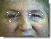 botox for blepharospasm