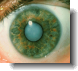 a typical eye cataract