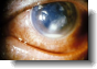 corneal ulcer symptoms and treatment