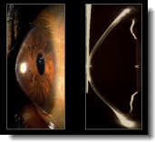 keratoconus eye disorder symtoms treatment