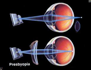 Presbyopia Eye Disorder Symptoms and Treatment