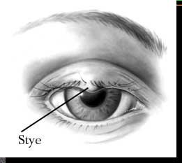 The stye in the eye